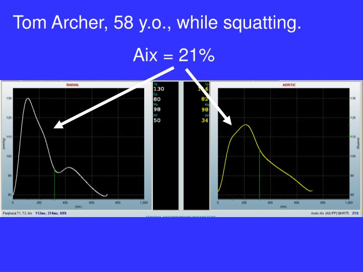 Tom Archer, 58 y.o., while squatting.