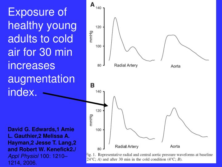 Exposure of healthy young adults to cold air for 30 min increases augmentation index.