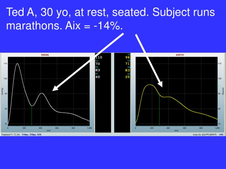 Ted A, 30 yo, at rest, seated. Subject runs marathons. Aix = -14%.