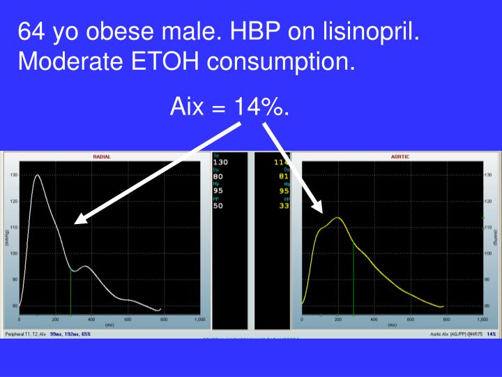 64 yo obese male. HBP on lisinopril. Moderate ETOH consumption.