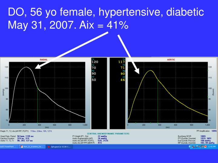 DO, 56 yo female, hypertensive, diabetic May 31, 2007. Aix = 41%