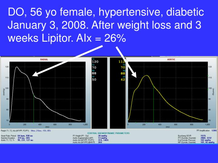 DO, 56 yo female, hypertensive, diabetic January 3, 2008. After weight loss and 3 weeks Lipitor. AIx = 26%