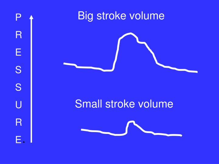 Big stroke volume