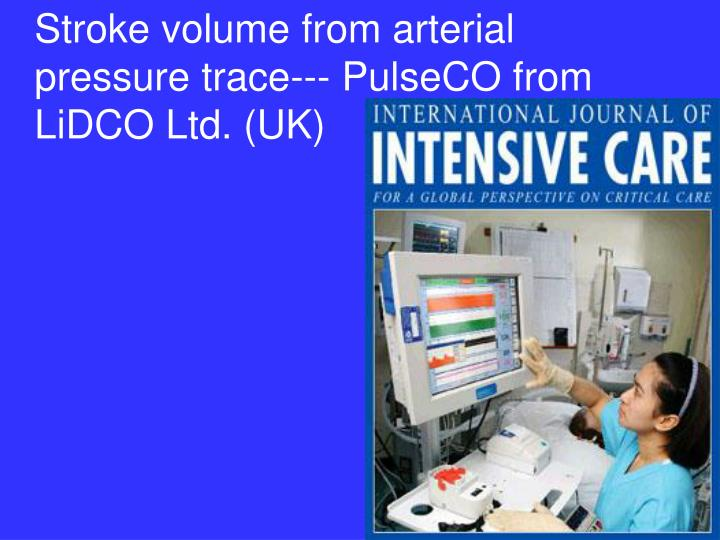 Stroke volume from arterial pressure trace--- PulseCO from LiDCO Ltd. (UK)