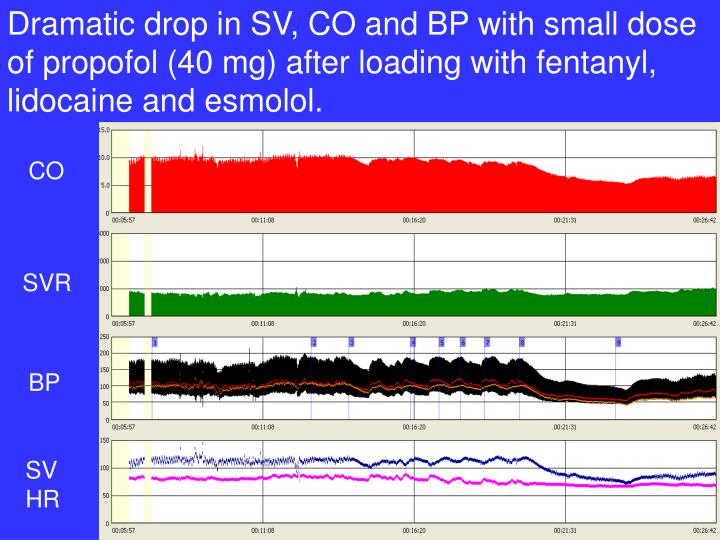 Dramatic drop in SV, CO and BP with small dose of propofol (40 mg) after loading with fentanyl, lidocaine and esmolol.