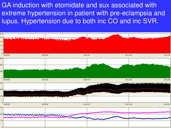 GA induction with etomidate and sux associated with extreme hypertension in patient with pre-eclampsia and lupus. Hypertension due to both inc CO and inc SVR.