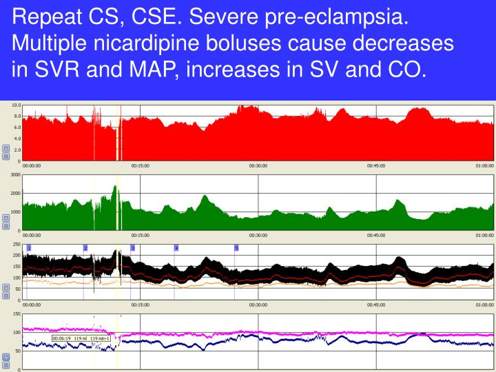 Repeat CS, CSE. Severe pre-eclampsia. Multiple nicardipine boluses cause decreases in SVR and MAP, increases in SV and CO.