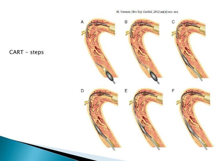 CART - steps