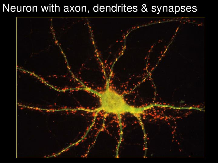 Neuron with axon, dendrites & synapses