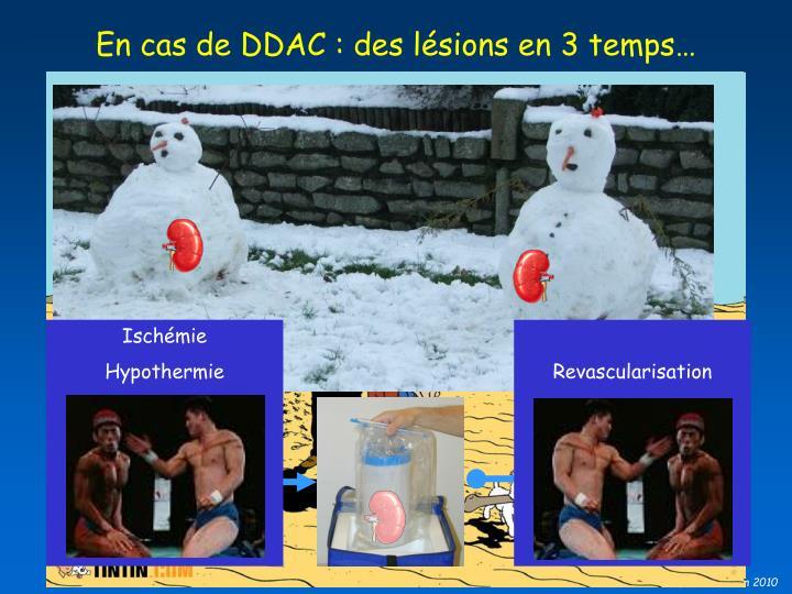 En cas de DDAC : des lésions en 3 temps…