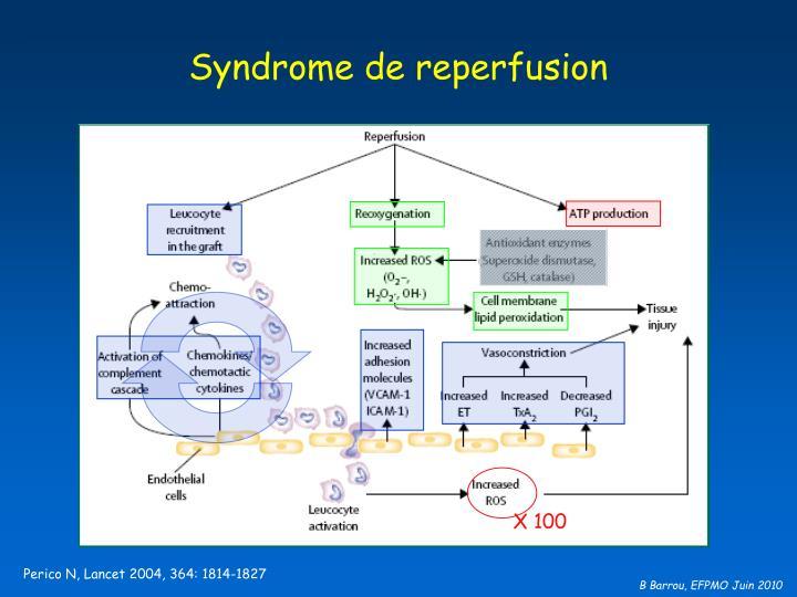 Syndrome de reperfusion