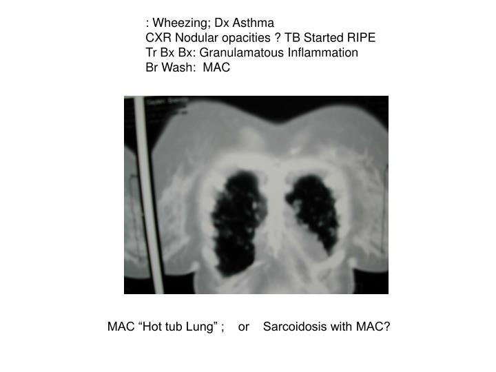 : Wheezing; Dx Asthma