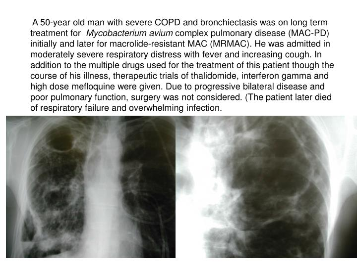 A 50-year old man with severe COPD and bronchiectasis was on long term treatment for