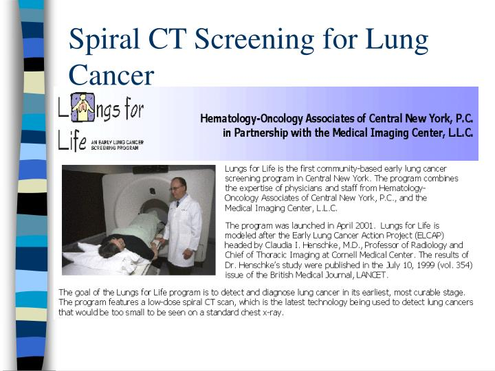 Spiral CT Screening for Lung Cancer