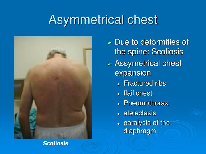 Due to deformities of the spine: Scoliosis