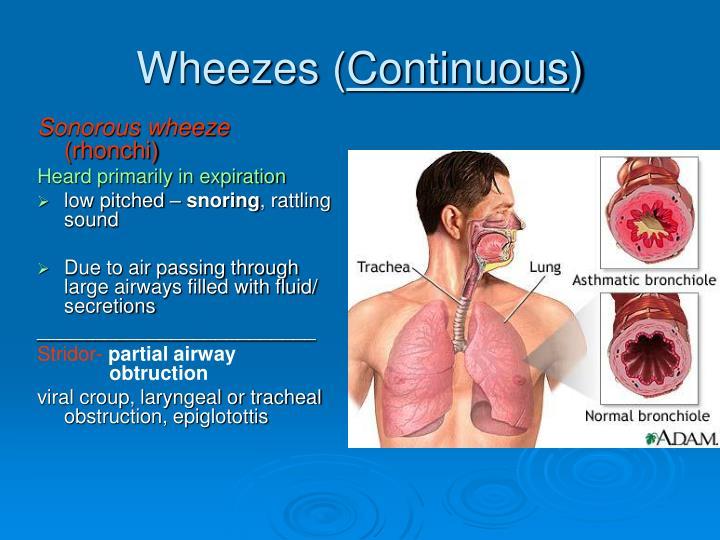 Wheezes (