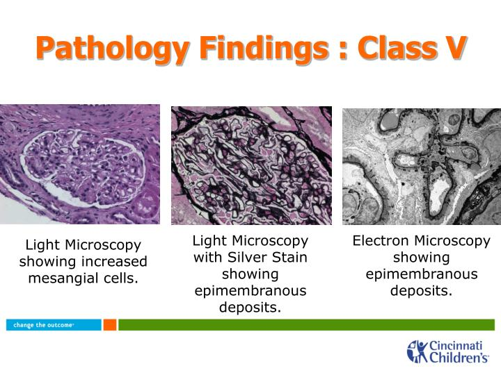 Pathology Findings : Class V