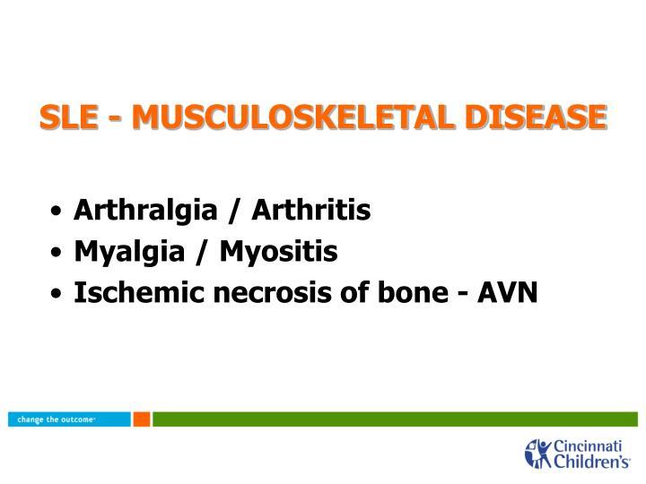 SLE - MUSCULOSKELETAL DISEASE