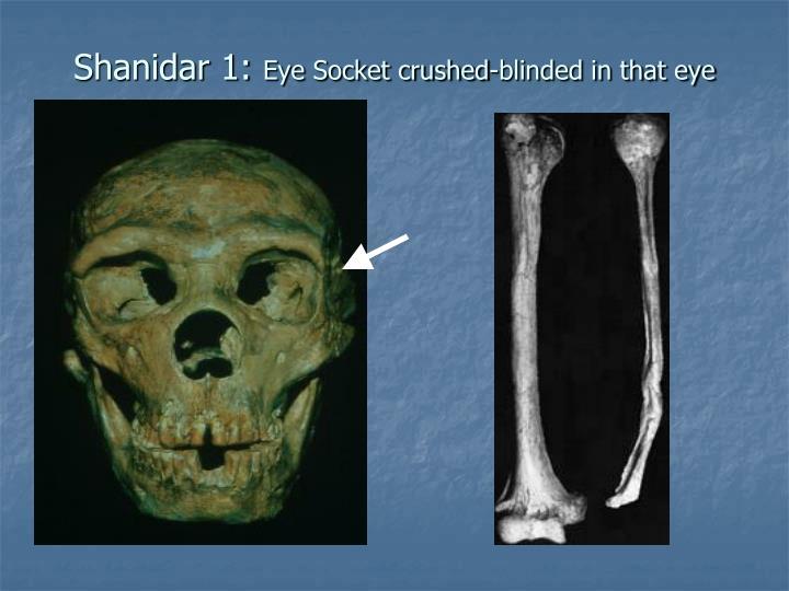 Shanidar 1: