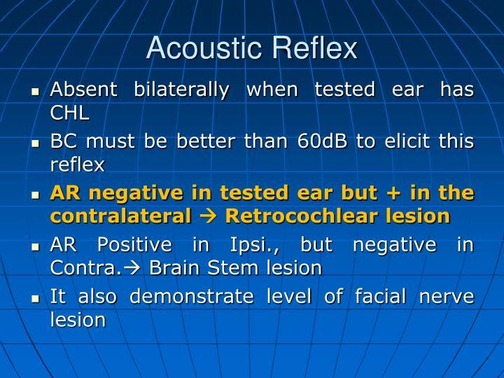 Acoustic Reflex