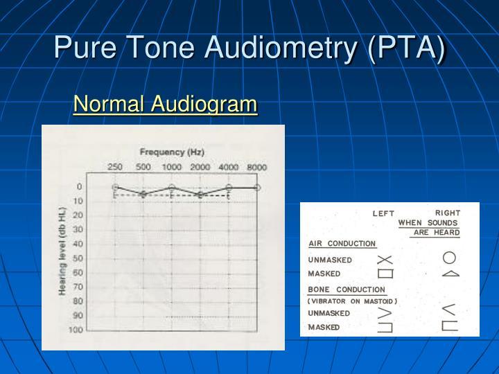 Pure Tone Audiometry (PTA)