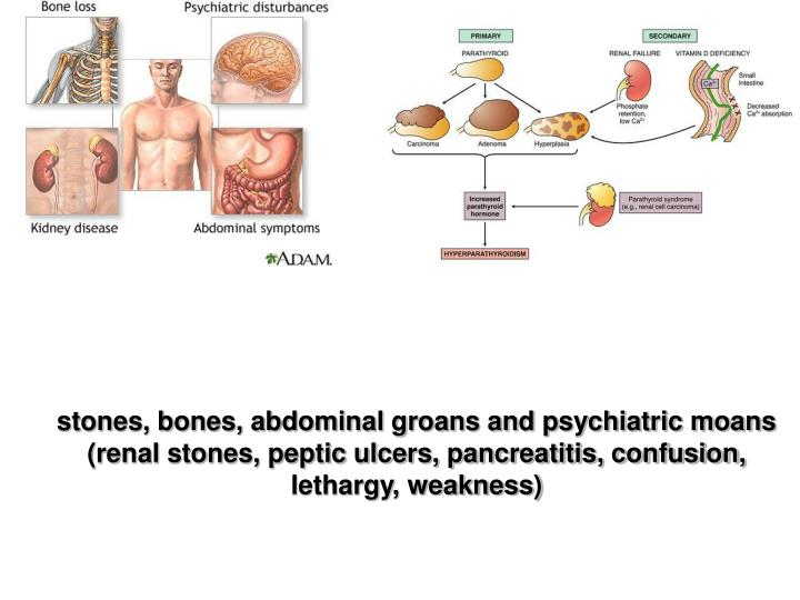stones, bones, abdominal groans and psychiatric moans