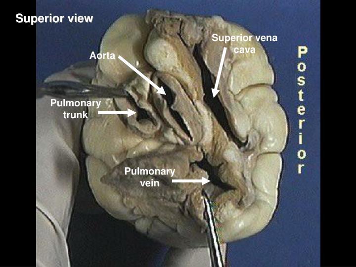 External Sheep Heart Anatomy. MICRO 1 Study Guide (2013-14 Ratcliffe ...