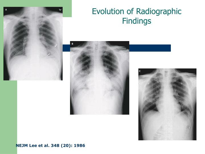 Evolution of Radiographic Findings