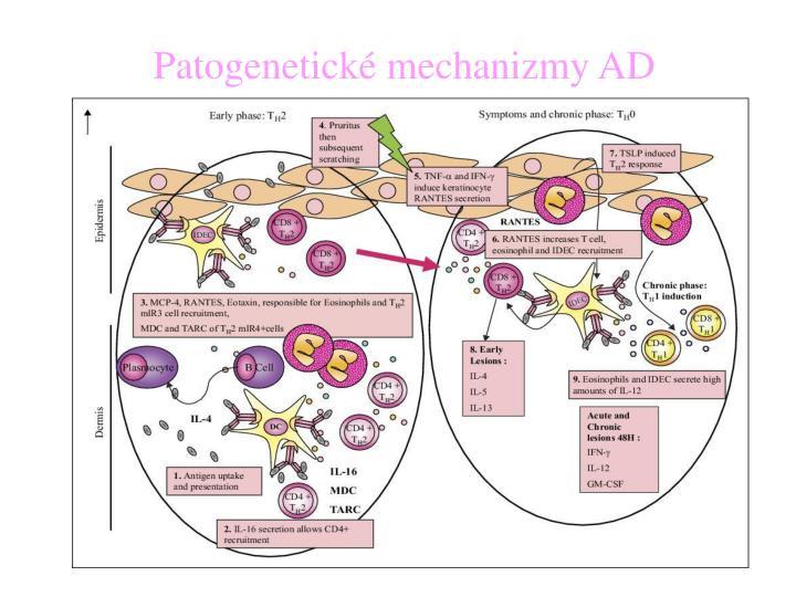 Patogenetické mechanizmy AD