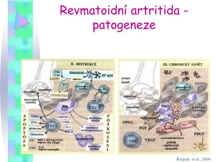 Revmatoidní artritida - patogeneze
