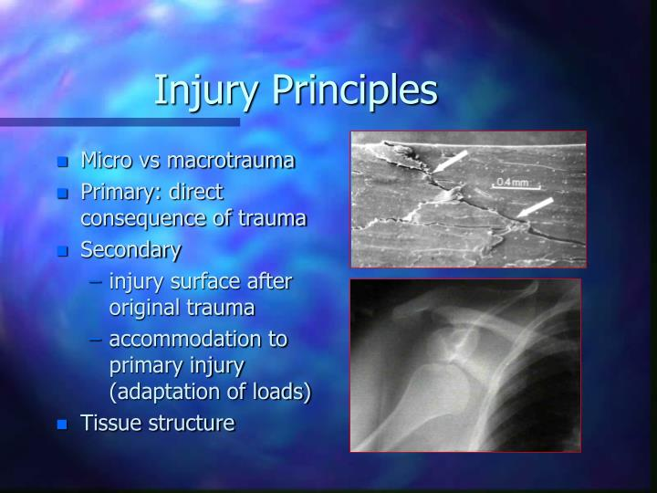 Injury Principles