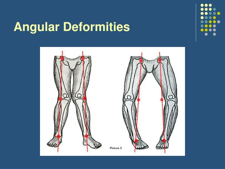 Angular Deformities