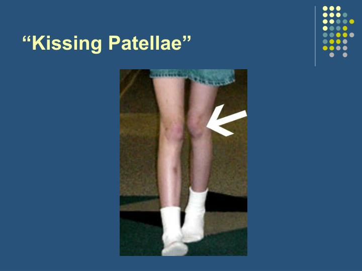 """Kissing Patellae"""