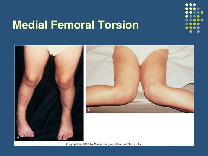 Medial Femoral Torsion