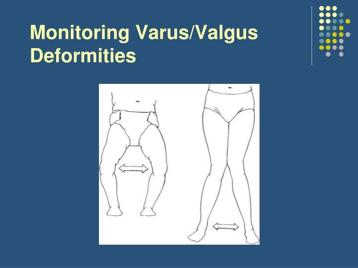 Monitoring Varus/Valgus Deformities