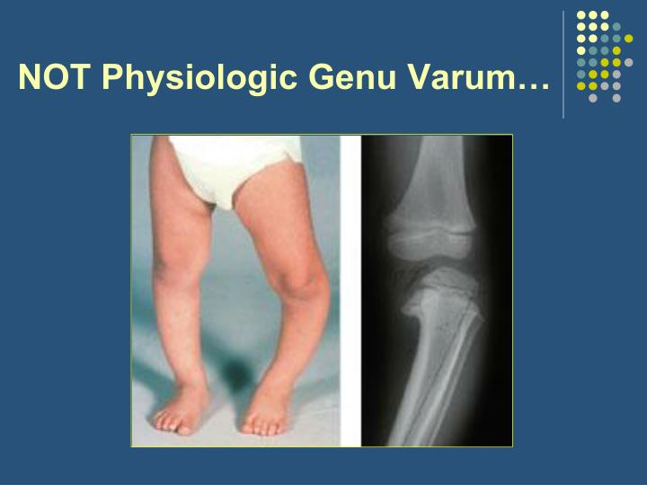 NOT Physiologic Genu Varum…
