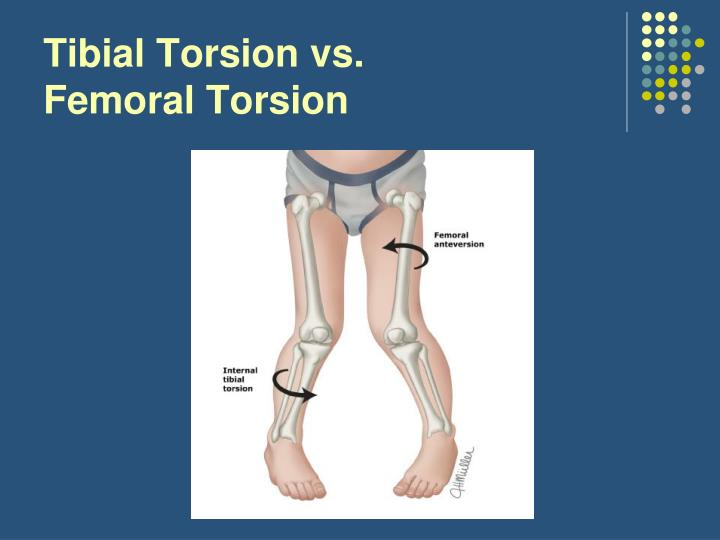 Tibial Torsion vs.