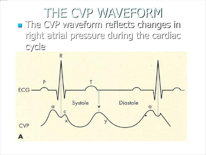 THE CVP WAVEFORM
