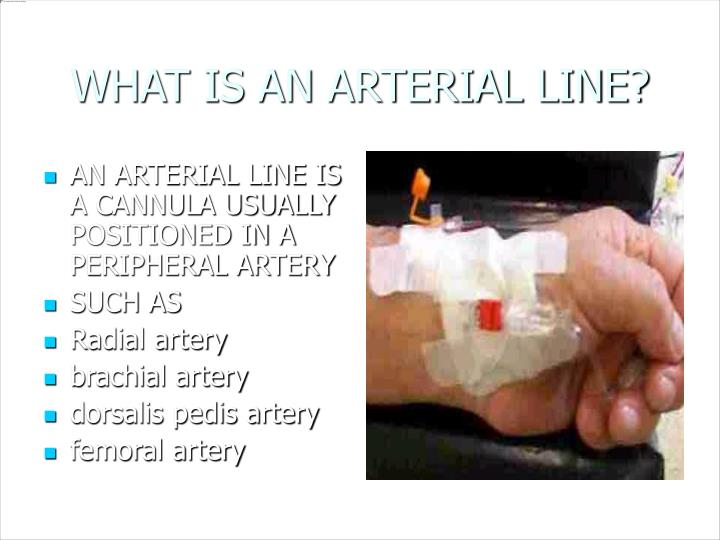 WHAT IS AN ARTERIAL LINE?