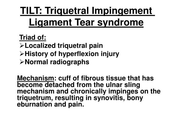 TILT: Triquetral Impingement Ligament Tear syndrome