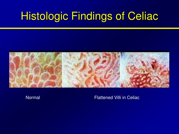 Histologic Findings of Celiac