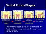 dental caries stages1
