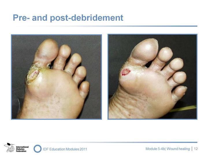 Pre- and post-debridement