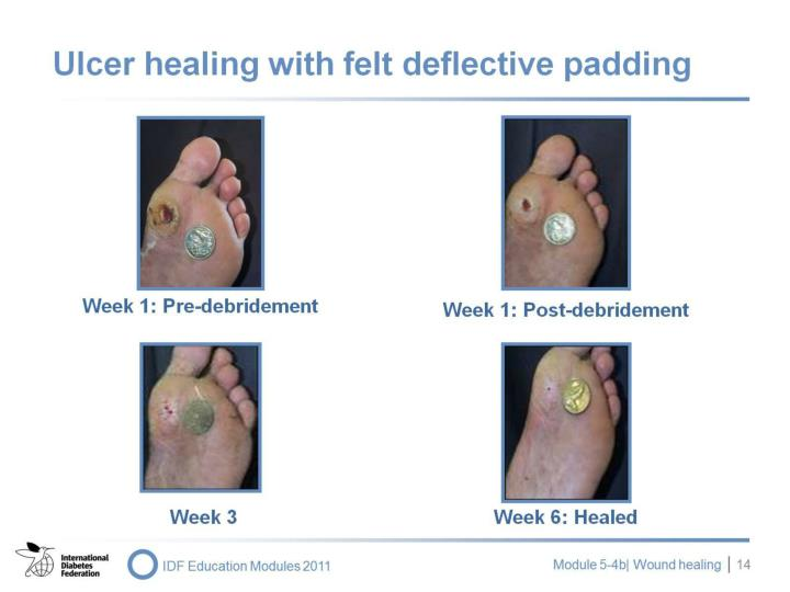 Ulcer healing with felt deflective padding