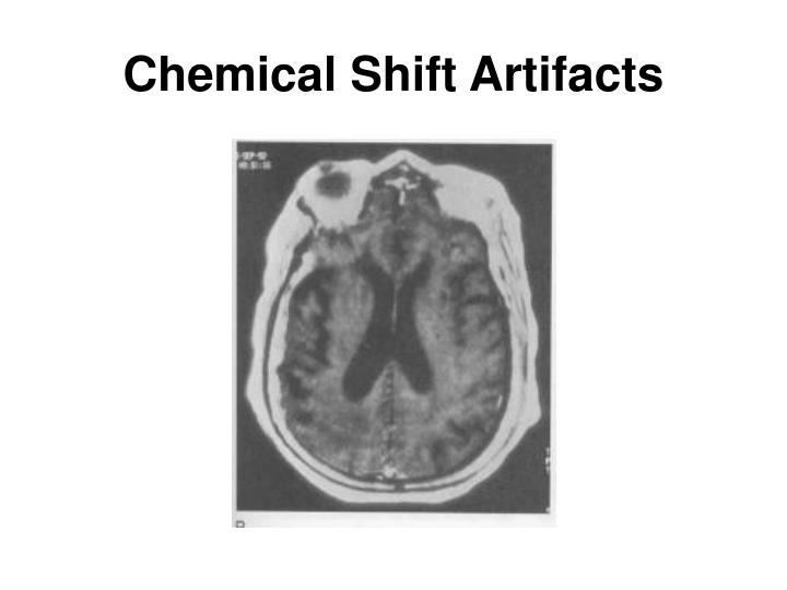 Chemical Shift Artifacts