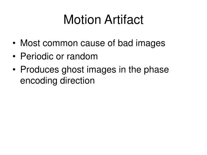 Motion Artifact