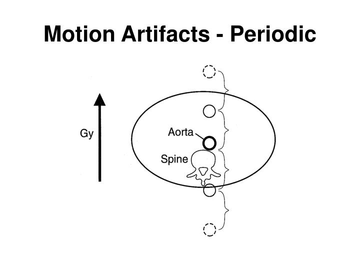 Motion Artifacts - Periodic