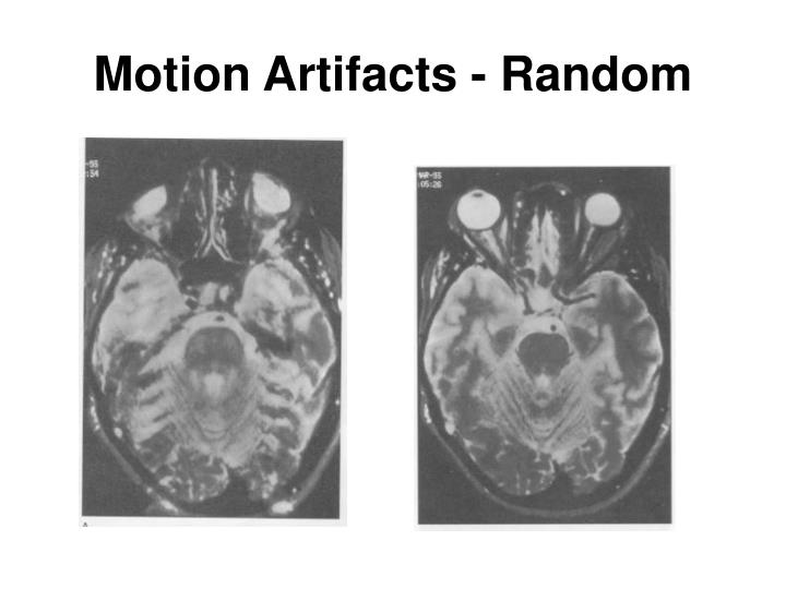 Motion Artifacts - Random