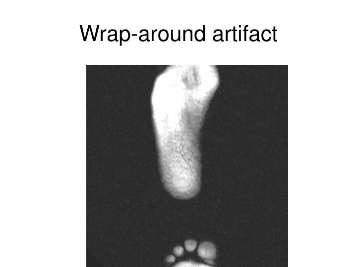 Wrap-around artifact
