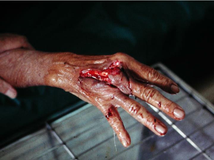 Hand bites